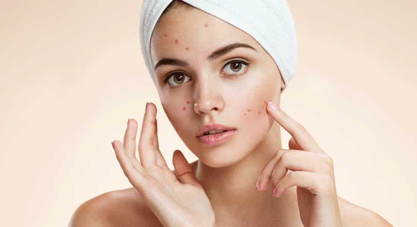 Acne (PIMPLE) Treatment