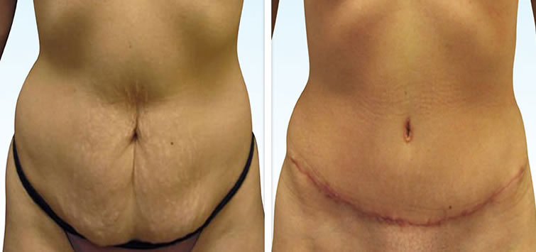 Abdominoplasty Tummy Tuck Surgery