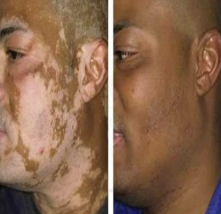 Vitiligo Surgery Aligarh Dr Amit 4 Skin Hair Expert