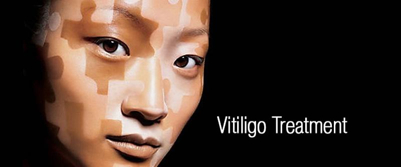 Vitiligo Surgery