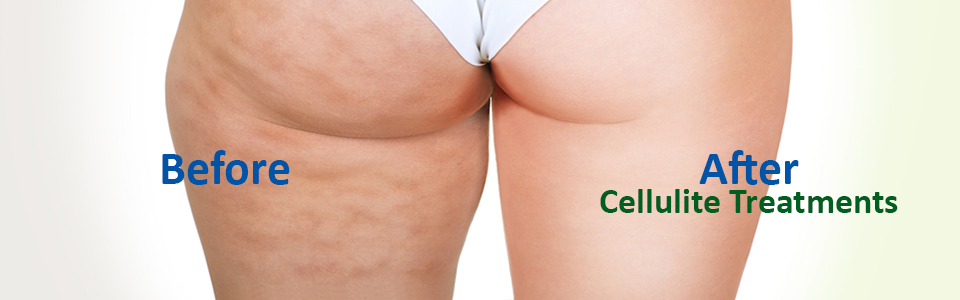 CELLULITE FAT REDUCTION SURGERY